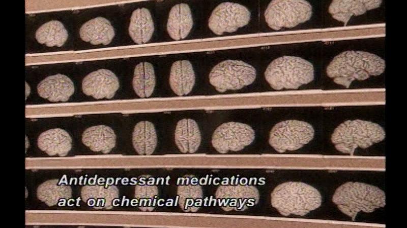 Still image from Childhood Depression