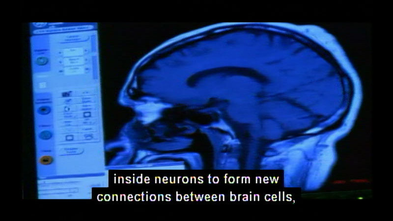 Still image from The Nature Of Things With David Suzuki: The Brain That Changes Itself