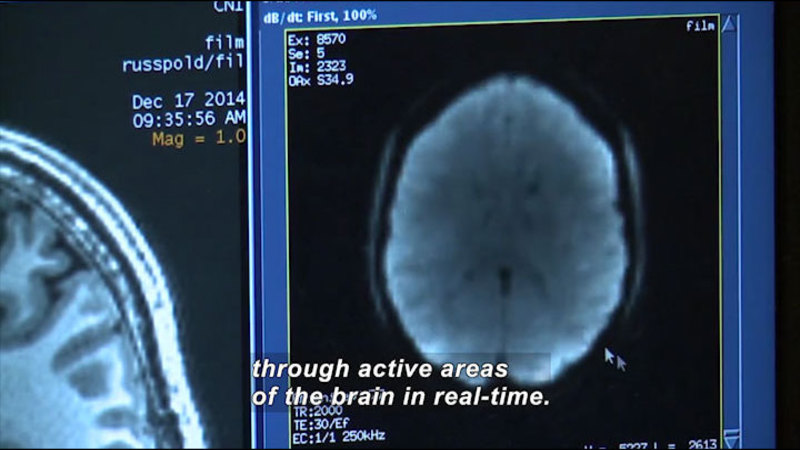 Still image from Science Nation: OpenfMRI Allows Neuroscientists to Share Brain Research Data