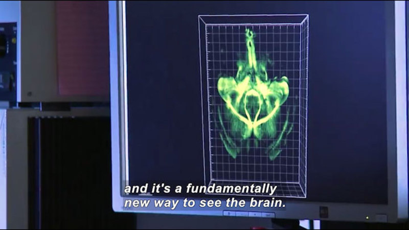 "Still image from Science Nation: ""CLARITY"" Opens Window to Brain Circuitry"