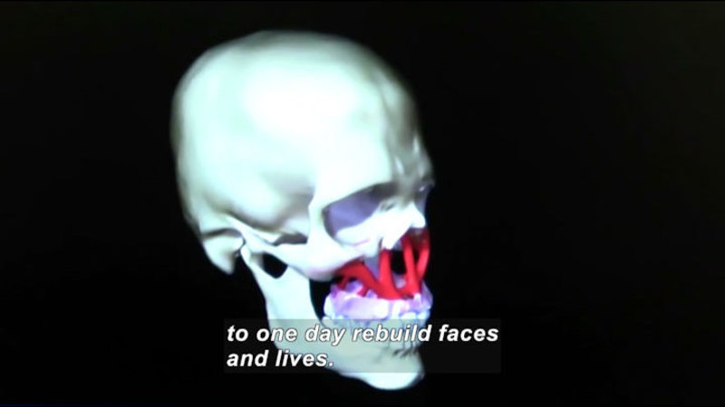 Still image from Science Nation: Medicine and Engineering Join Forces to Restore Disfigured Faces
