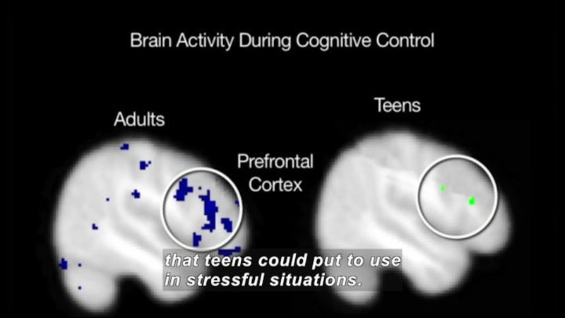 Still image from Science Nation: Teen and Stress