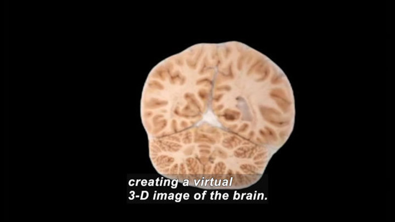 Still image from Science Nation: Mind Mappers--Mapping the Brain to Understand the Mind